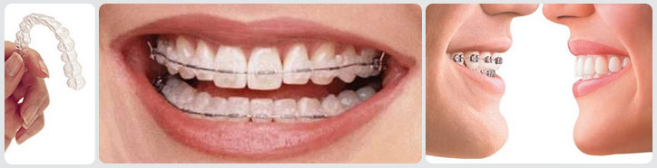 Brace yourself our patients get first class treatment no matter nice girl bad teeth solutioingenieria Images